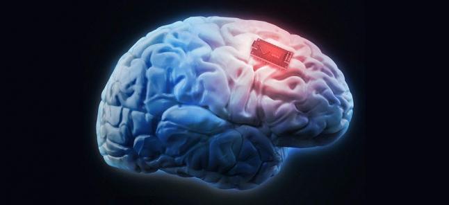 Фото - Жидкий чип. Нейроимплантант нового поколения.