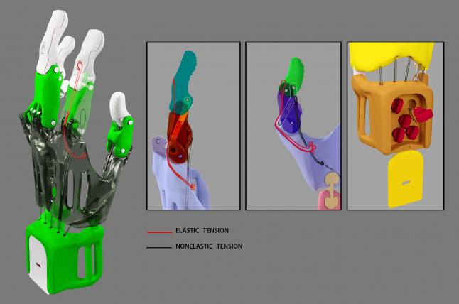 Фото - Протезирование на 3d принтере